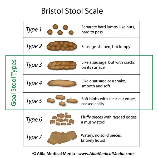 Symptoms Amp Types Bowel Control Voices For Pfd